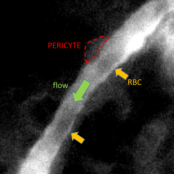 Pictures taken 1 ms apart with the Prime BSI, showing the passage along a capillary (in an anaesthetised mouse brain) of red blood cells (RBCs; hazy black objects in the middle of the capillary, with orange arrows pointing at them - the bottom RBC moves out of the field of view during the time between the pictures).